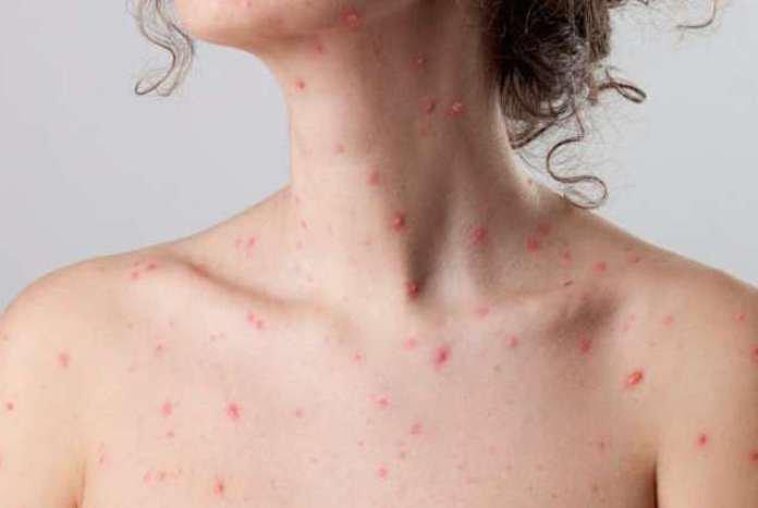 Điều trị thủy đậu giúp giảm đau, giảm ngứa cho bệnh nhân