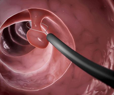 Mổ polyp buồng tử cung