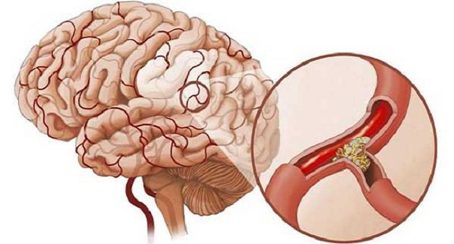 Nhồi máu não sau khi phẫu thuật sẽ giúp cải thiện khả năng ngôn ngữ của bệnh nhân