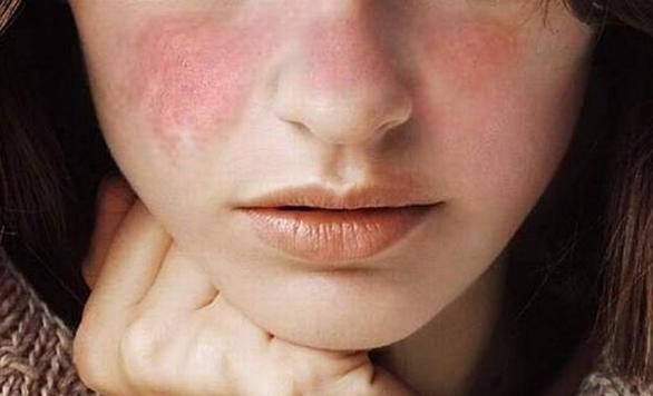Bà bầu mắc bệnh lupus ban đỏ