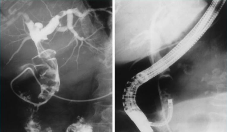 Kỹ thuật chụp x quang mật tuỵ ngược dòng qua nội soi