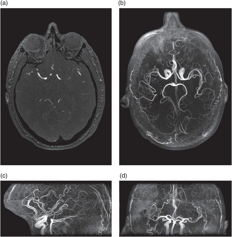 Quy trình chụp cộng hưởng từ tĩnh mạch không tiêm thuốc đối quang từ