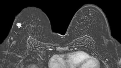 MRI vú