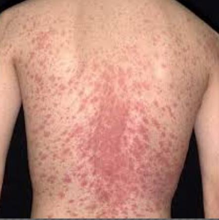 Bệnh đỏ da toàn thân