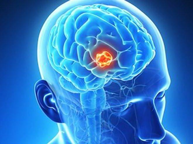Chụp PET/CT giúp phát hiện u não