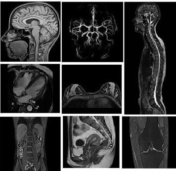 Quy trình chụp cộng hưởng từ tĩnh mạch có tiêm thuốc đối quang từ