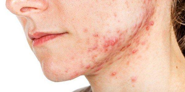 Các phương pháp xét nghiệm và chẩn đoán viêm da dầu (tiết bã)