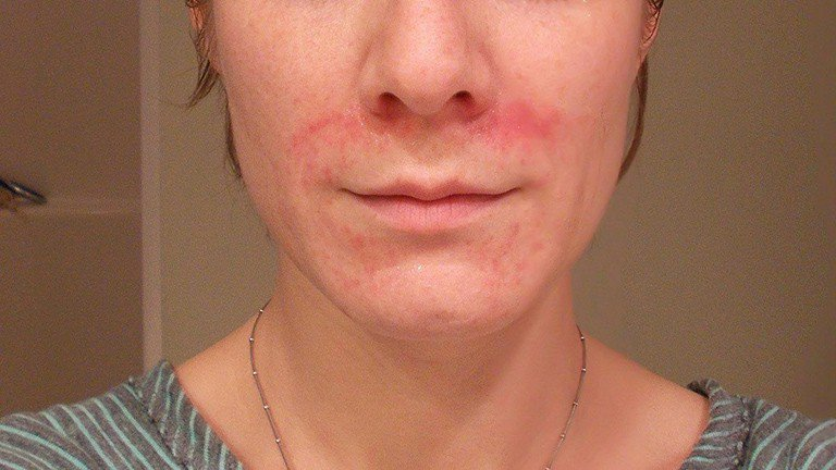 Seborrheic dermatitis of the face