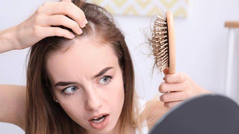 Rụng tóc là biểu hiện của viêm da dầu tiết bã