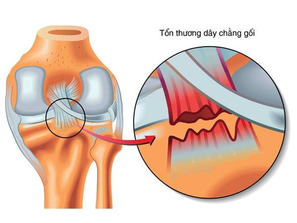 Mổ nội soi tái tạo dây chằng chéo trước bằng gân bánh chè tự thân