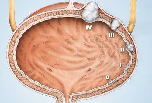 Phẫu thuật nội soi cắt u bàng quang tái phát