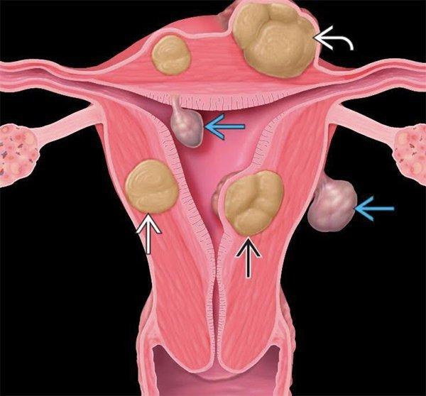 Chỉ một số trường hợp có u xơ tử cung được chỉ định mổ