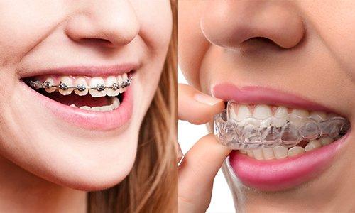 Niềng răng có đau không? Đau nhất là giai đoạn nào