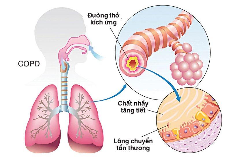Thông khí, sạch đờm ở người bệnh mắc phổi tắc nghẽn mãn tính COPD