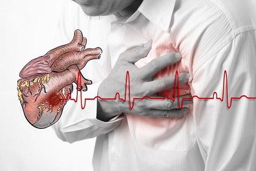 Đau thắt ngực là triệu chứng của bệnh trái tim tan vỡ