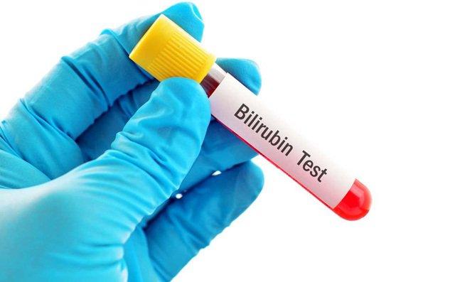 Nguyên nhân tăng nồng độ Bilirubin liên hợp