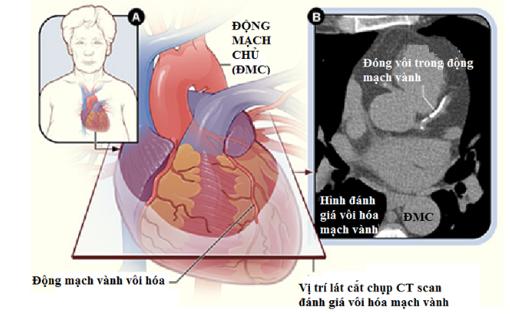 Chụp CT vôi hóa mạch vành