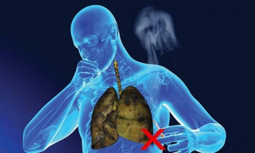 Hút thuốc lá là một yếu tố làm tăng nguy cơ mắc các bệnh về đường hô hấp