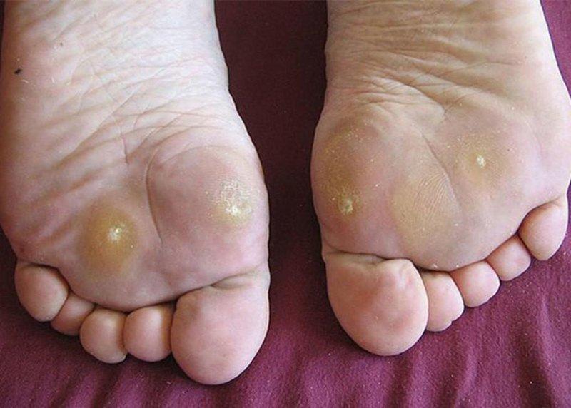 Chai chân ở người mắc bệnh tiểu đường