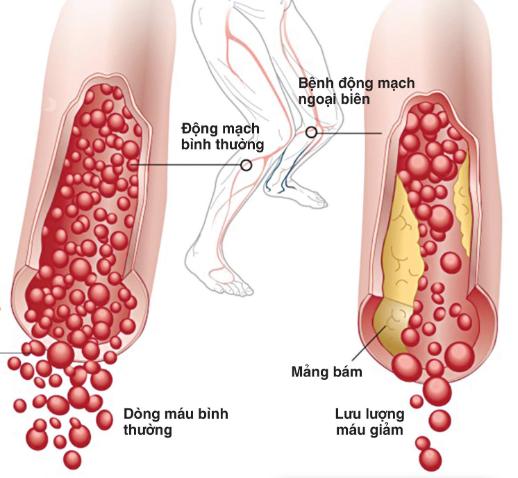 Bệnh động mạch biên chi dưới