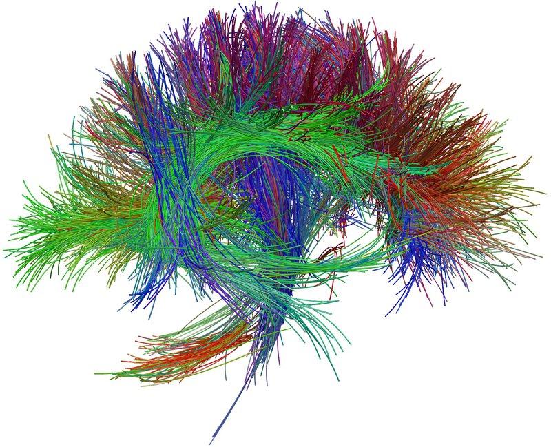 Chụp cộng hưởng từ các bó sợi thần kinh