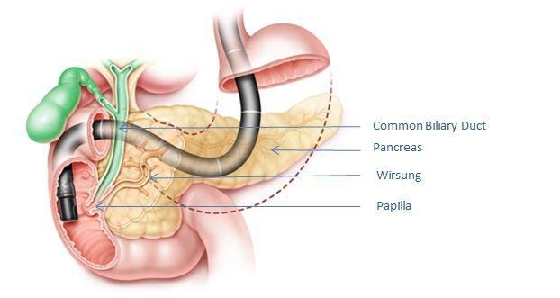 Điều trị sỏi mật bằng ống soi mềm