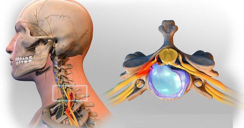 Kết quả chụp CT giúp chẩn đoán thoát vị đĩa đệm cột sống cổ