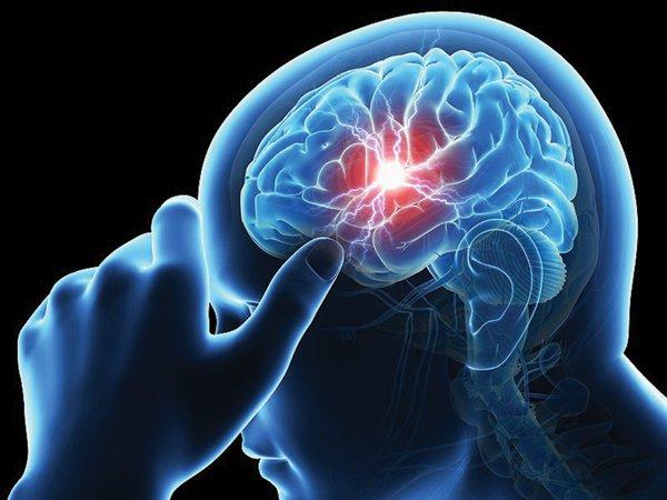 Quy trình chụp cắt lớp vi tính tưới máu não có tiêm thuốc đối quang