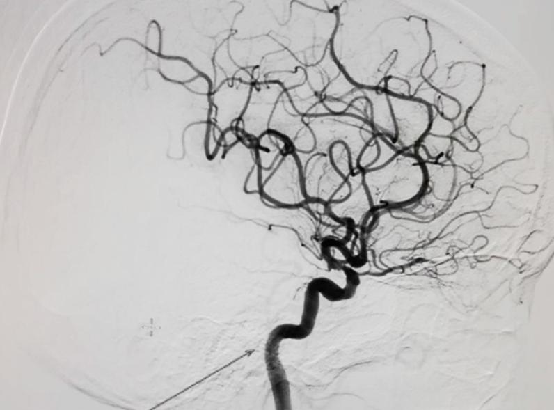 Quy trình chụp hệ thống tĩnh mạch tạng số hoá xoá nền