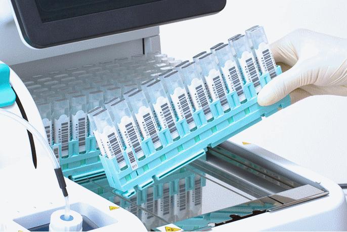 Xét nghiệm miễn dịch tìm máu ẩn trong phân