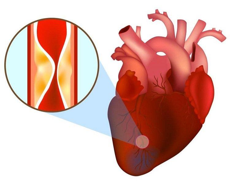 Đối tượng nào có nguy cơ cao bị nhồi máu cơ tim?