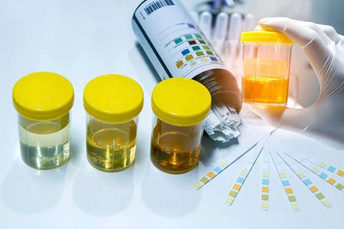 Xét nghiệm nước tiểu giúp chẩn đoán tình trạng nghẽn đường tiết niệu