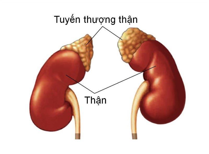 tang-san-tuyen-thuong-than-bam-sinh-co-che-gay-benh-phan-loai-trieu-chung