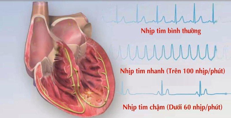 Bệnh nhân có thể bị rối loạn nhịp tim khi gây mê nội khí quản