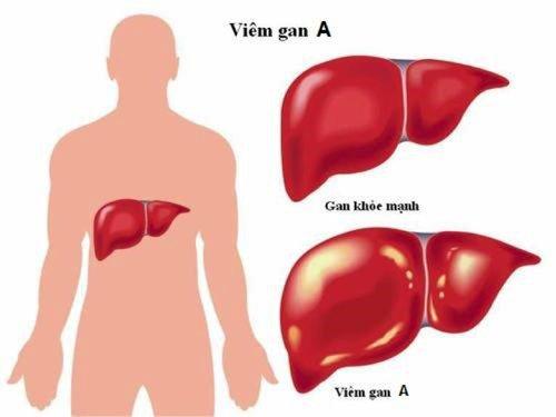 Viêm gan A có lây qua đường máu không?