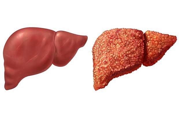 Bệnh vôi hóa gan có nguy hiểm không?