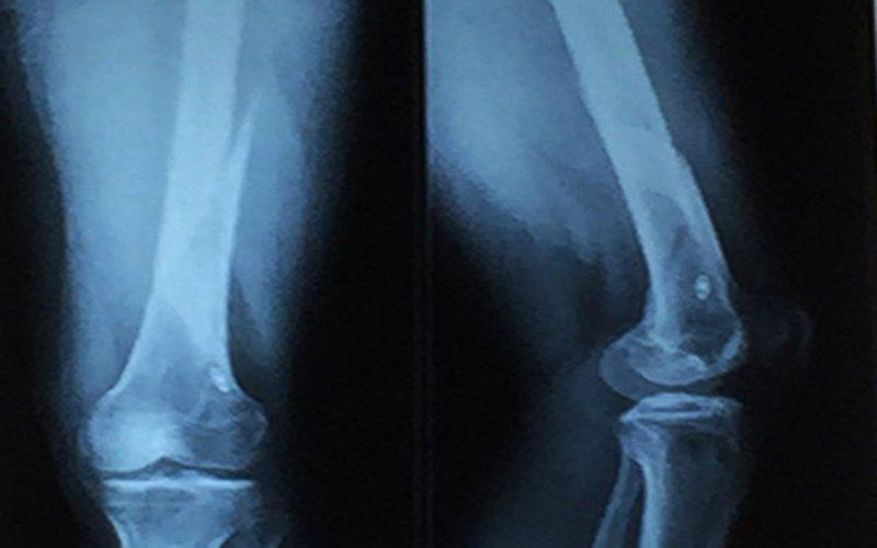chụp x -quang đùi