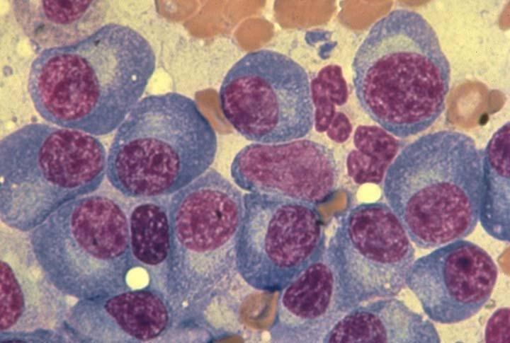 sinh thiết tế bào tủy xương