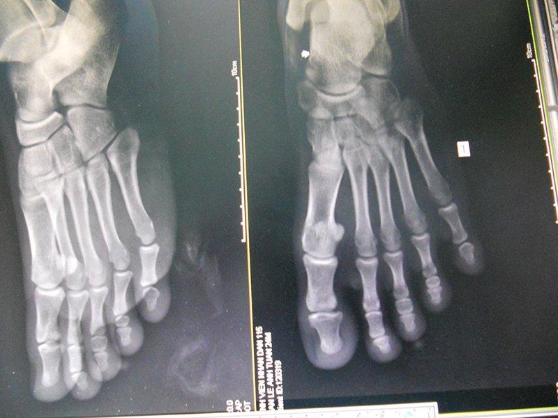 x-quang bàn chân