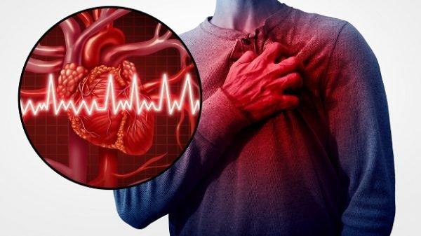 Các phương pháp điều trị suy tim giai đoạn 3