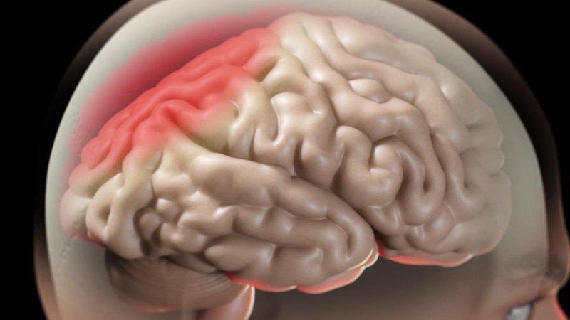 Trong quá trình phẫu thuật cần điều trị phù não cho bệnh nhân