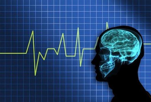 Điện não đồ giúp chẩn đoán chết não