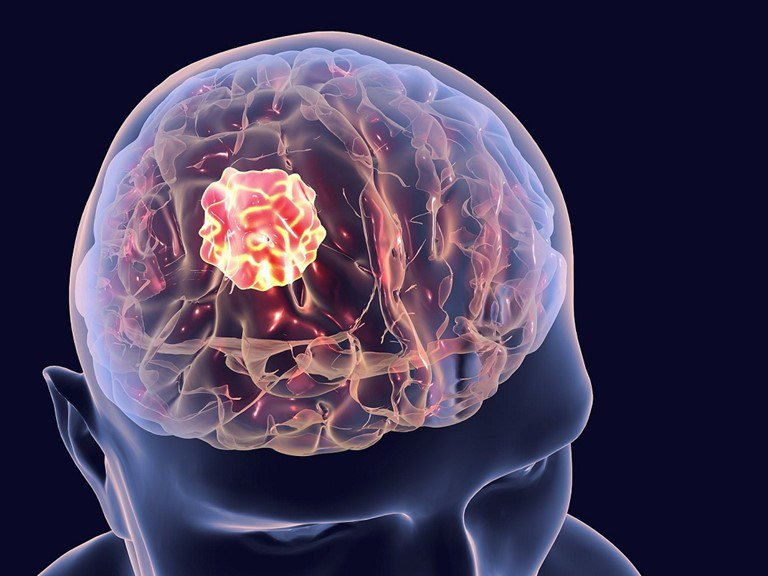 khối u não