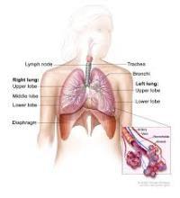 Kỹ thuật đặt stent khí phế quản