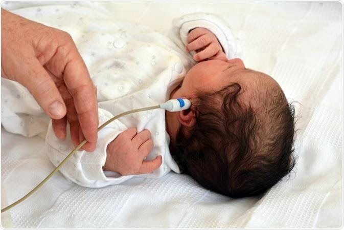 Điều dưỡng đo âm ốc tai cho bé sơ sinh t