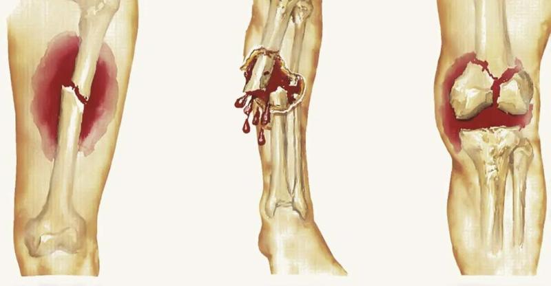 Các yếu tố nguy cơ của ung thư xương