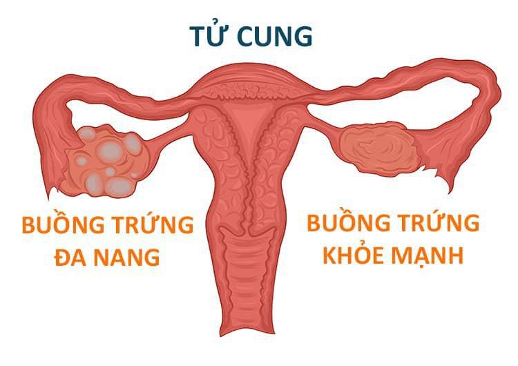 Phẫu thuật nội soi đốt điểm buồng trứng điều trị buồng trứng đa nang