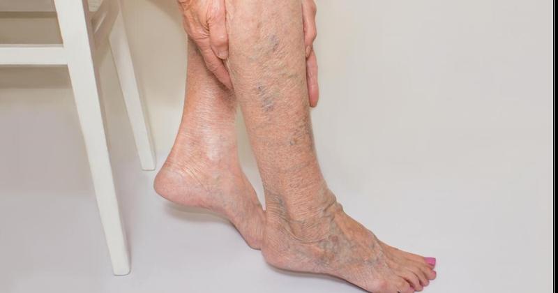 Bài tập điều trị bệnh nhân suy van tĩnh mạch chân
