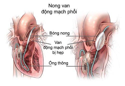 nong hẹp nhánh động mạch phổi
