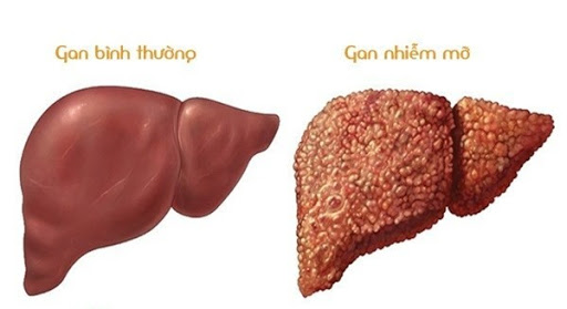 Gan nhiễm mỡ độ 3 có nguy cơ dẫn đến xơ gan